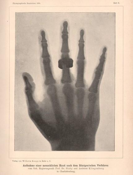 xray-hand-in-rundschau-1896